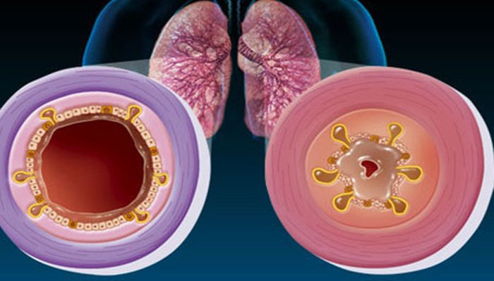 Obstructive bronchitis in infants without fever