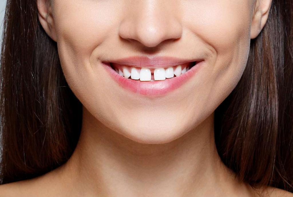 Диастема зубов между передними зубами