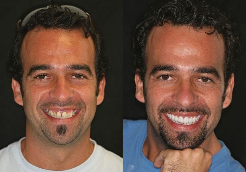 Как в айфоне поправить зубы на фото