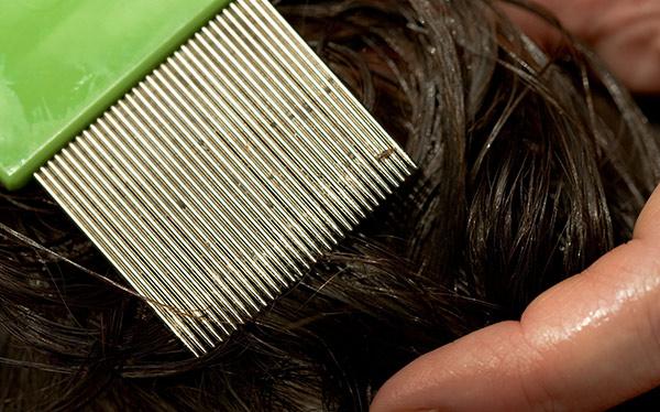 К чему снятся гниды на волосах