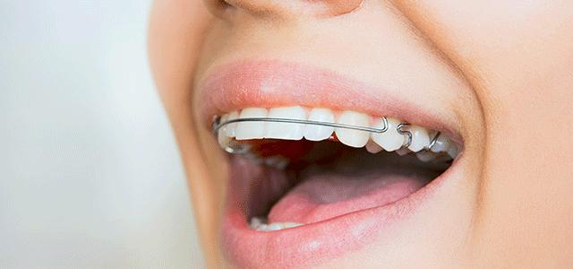 How to quickly align your teeth without braces?