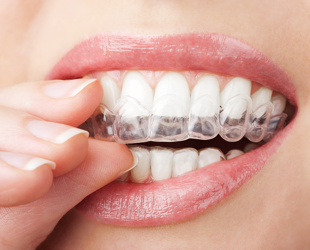 How to align your teeth without braces?