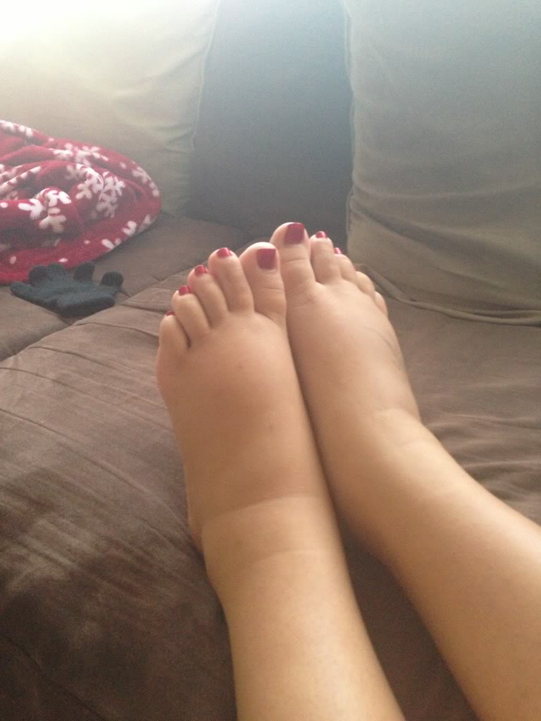 leg swelling treatment after childbirth
