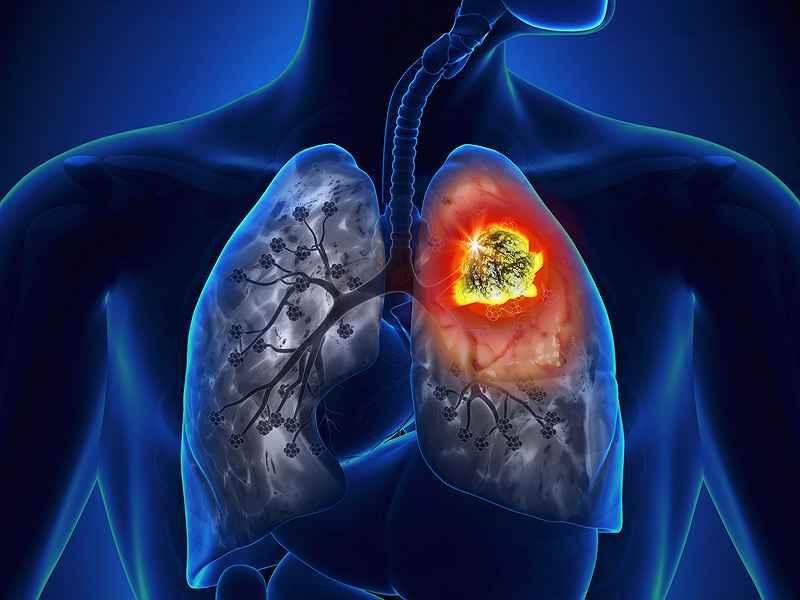 peripheral lung adenocarcinoma