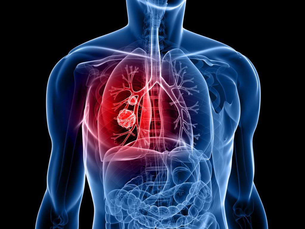 pulmonary adenocarcinoma stage 4
