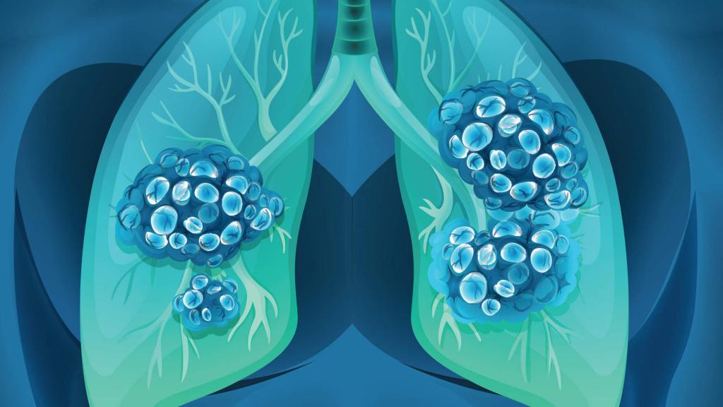 lung adenocarcinoma treatment