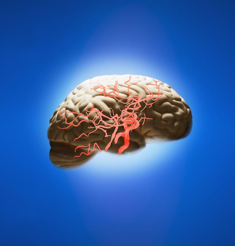 Диабетическое поражение сосудов мозга