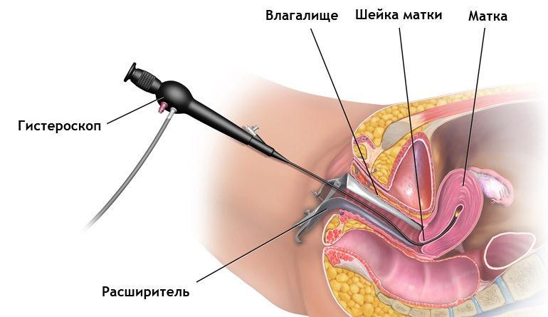 Выскабливание полости матки (кюретаж) – каковы основные цели процедуры? || Гистероскопия в гинекологии показания