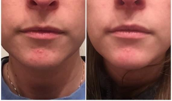 dermatitis on face treatment