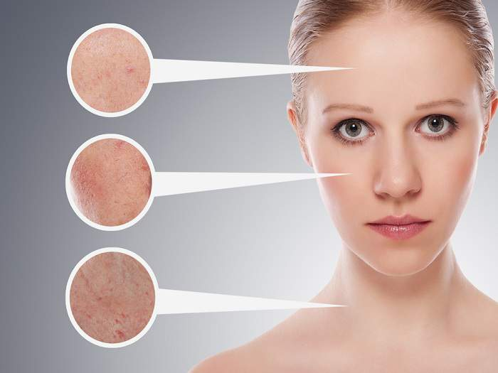 treatment of dermatitis on the face in adults