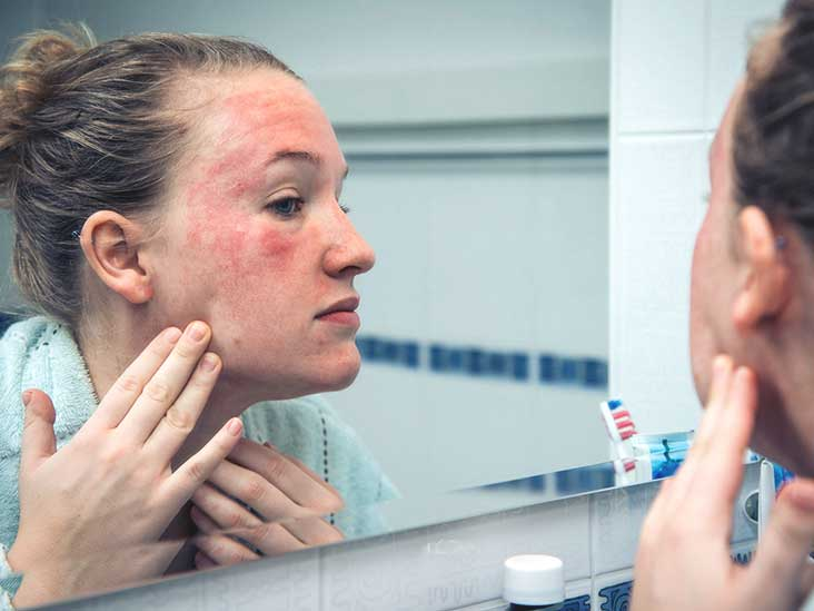 dermatitis on the face photo in adults