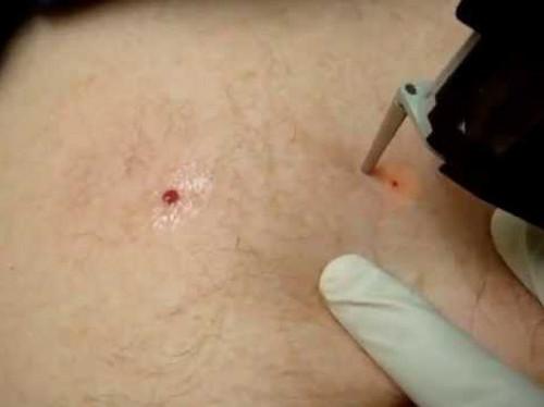Удаление гемангиомы кожи