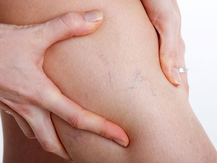 Причины гемангиомы кожи