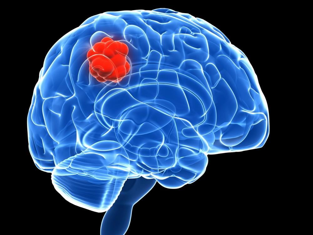 Глиобластома головного мозга как умирают