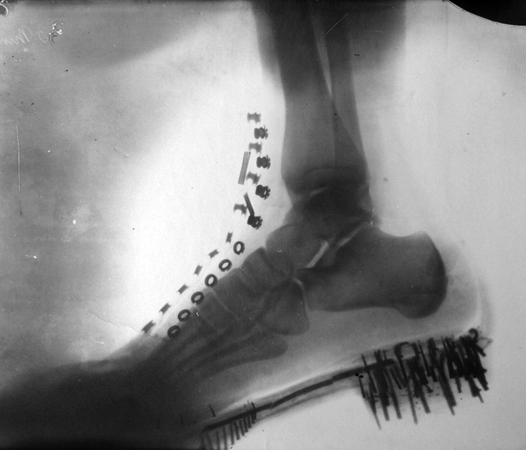 рентген ноги Теслы