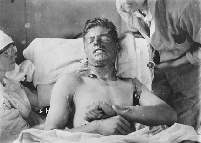 blistering effect of mustard gas