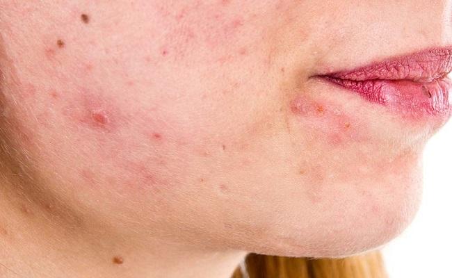 Хроническая форма себорейного дерматита