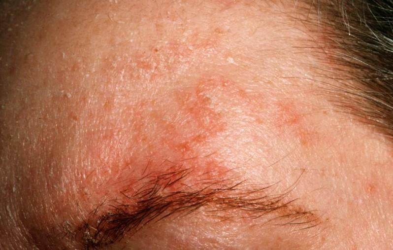 Symptoms of seborrheic dermatitis