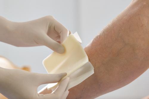 Лечение рожистого воспаления