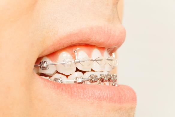 Applying braces