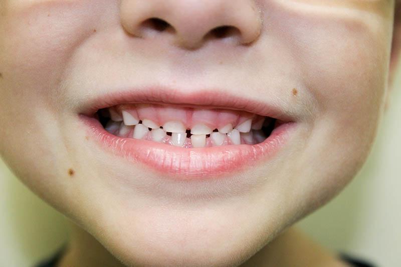 Malocclusion in children