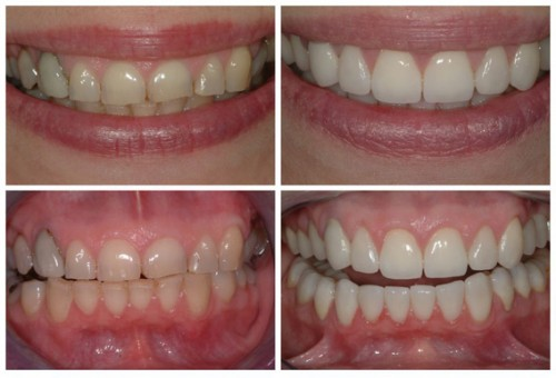Before and after applying braces