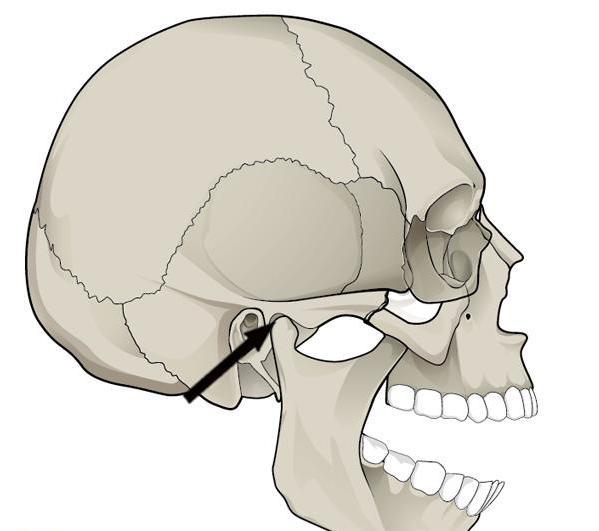 Dysfunction of the temporomandibular joint