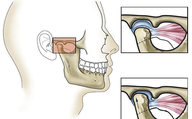 Изображение - Нижнечелюстной сустав симптомы 2468511