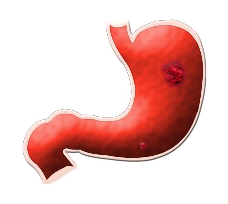 Заболевание желудка симптомы и лечение диета