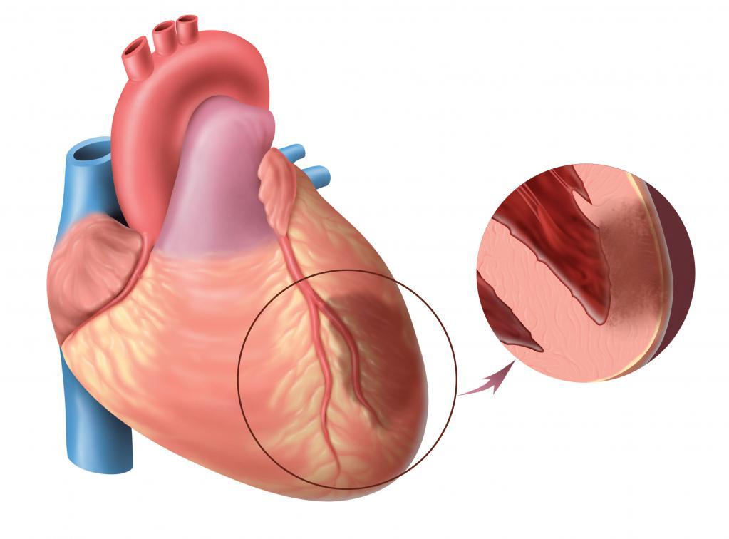 кардиомагнил применение аналоги