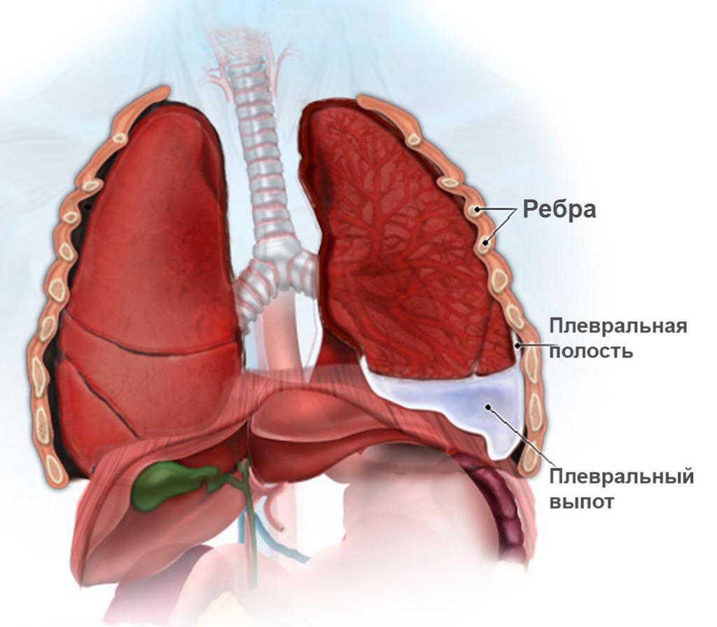 гидроторакс легких при онкологии прогноз