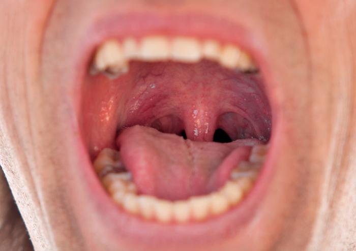 Симптомы болезни горла
