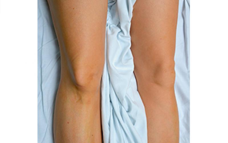 Symptoms of knee dislocation