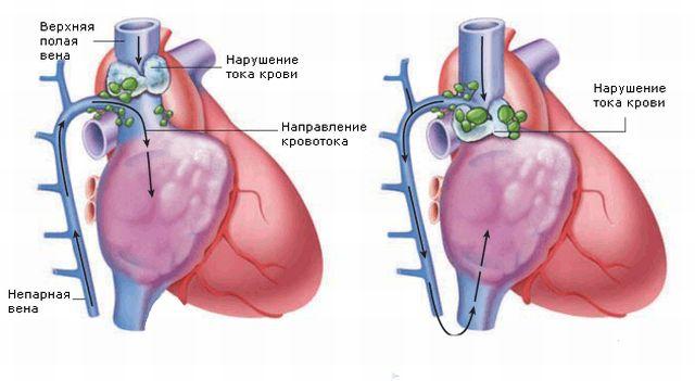 Области, пораженные синдромом верхней полой вены