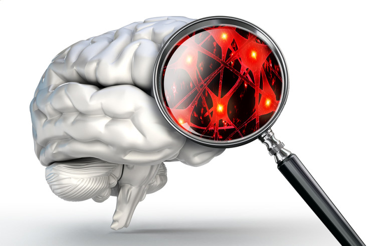cortical atrophy of the brain