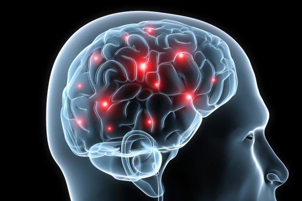 умеренная атрофия головного мозга