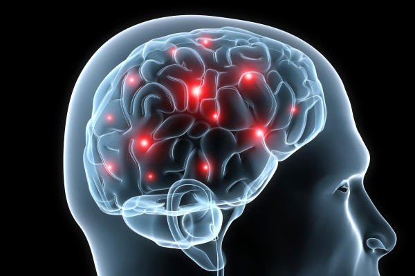 moderate brain atrophy