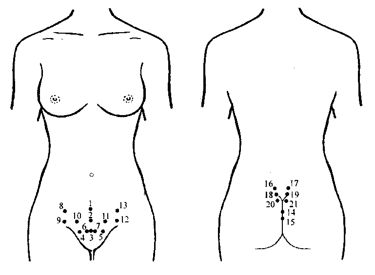 Points staging leeches in gynecology