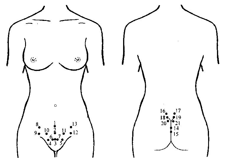Как помогают пиявки в гинекологии