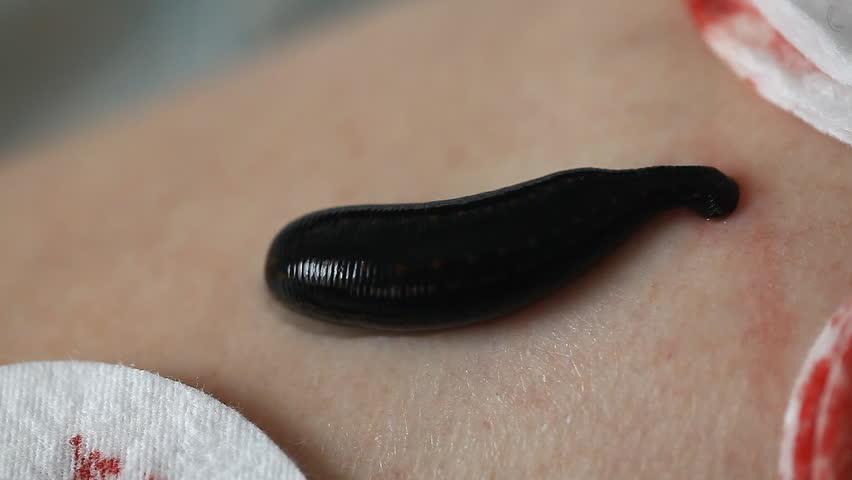 Leech on the body
