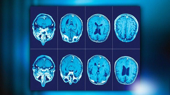 МРТ при рассеянном склерозе