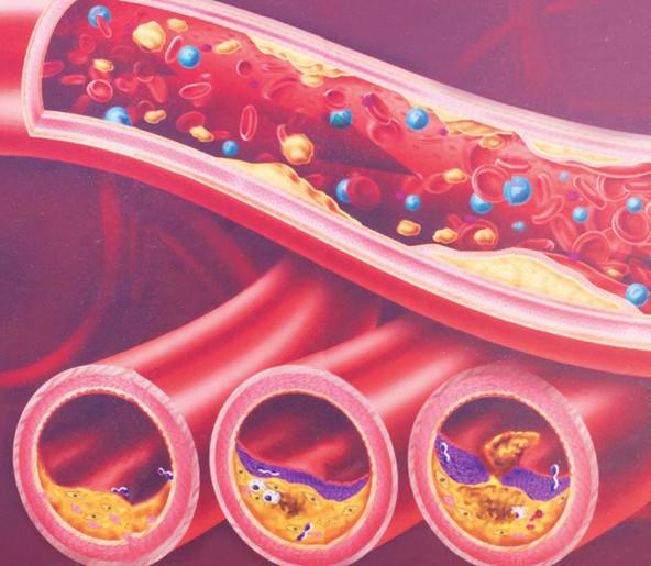 artery syndrome