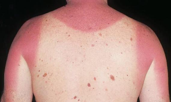 causes of nevi