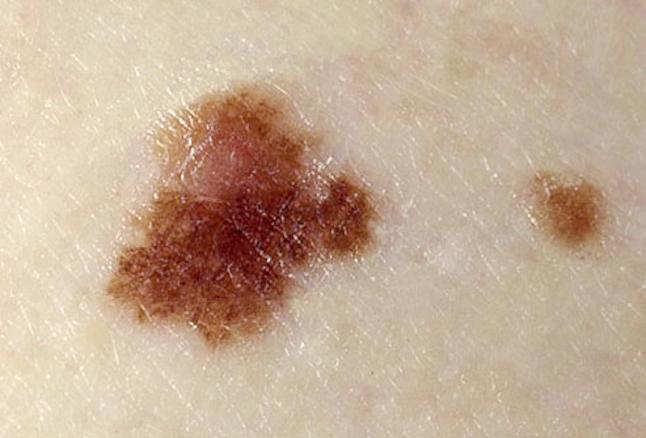 treatment of dysplastic nevus