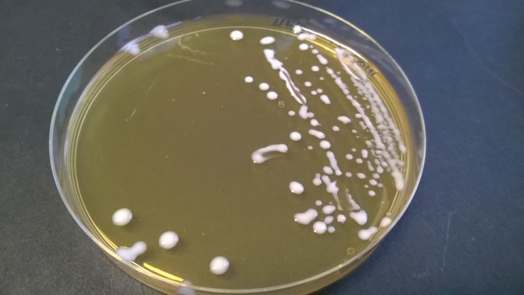 lactobacillus spp обнаружено
