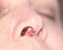 Гранулема зуба лечение после удаления