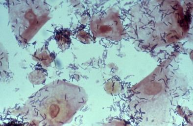 Ключевые клетки в мазке: о чем они говорят :: SYL.ru