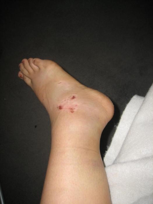 Боль в коленях при ходьбе лечение народными средствами