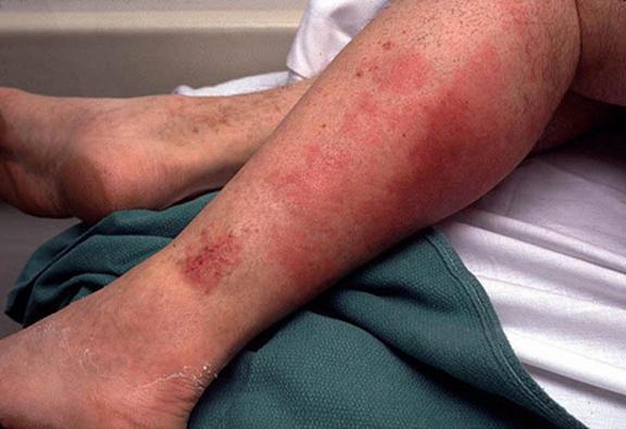 Народное средство от боли в ногах при диабете