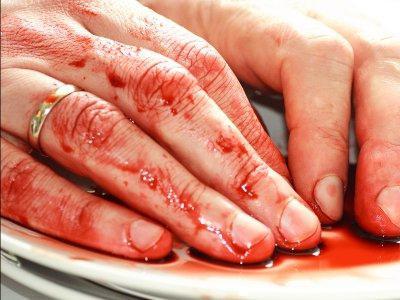 Кровотечение во время секса